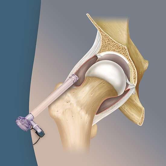 Atroscopia de cadera Alicante